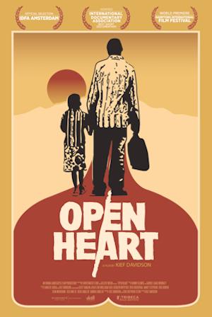 Open Heart Poster