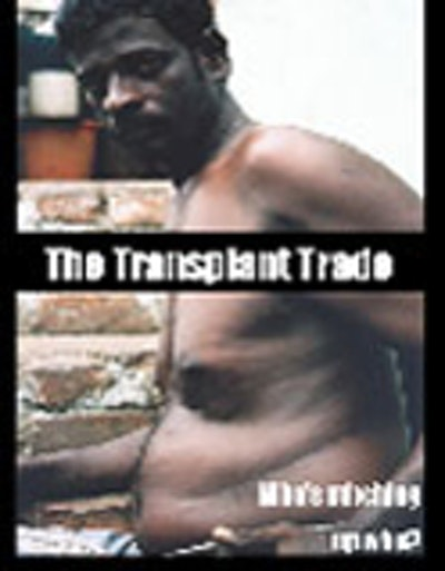 The Transplant Trade